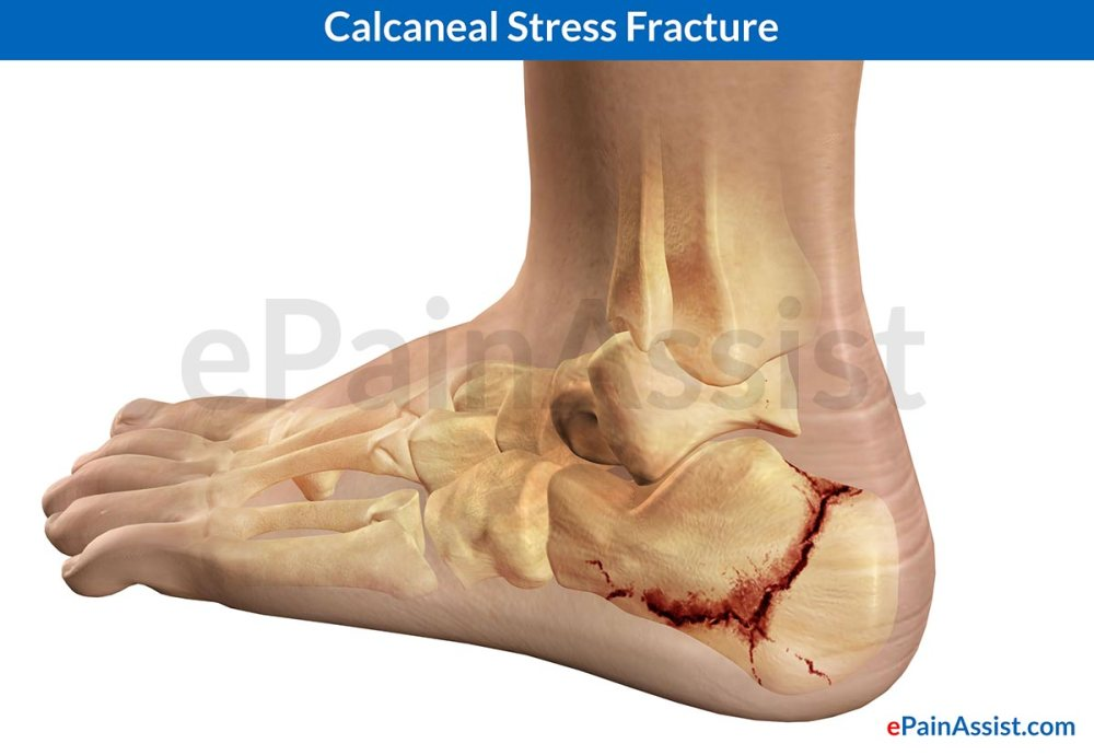 Calcaneal-Stress-Fracture
